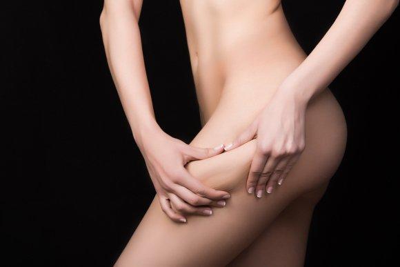 liposuction in nyc